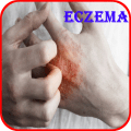 Eczema Causes, Diagnosis, and Management 1.0