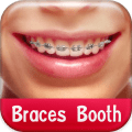 Braces Booth 1.8