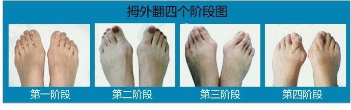 拇指外翻手術需要多久-拇指外翻手術過程圖_大腳趾外翻手術費用_腳拇指外翻手術費用_拇指外翻如何治療