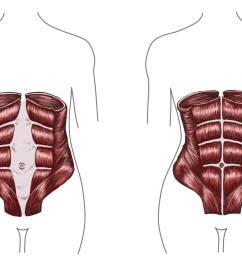 the diastasis recti during pregnancy  [ 2000 x 1242 Pixel ]