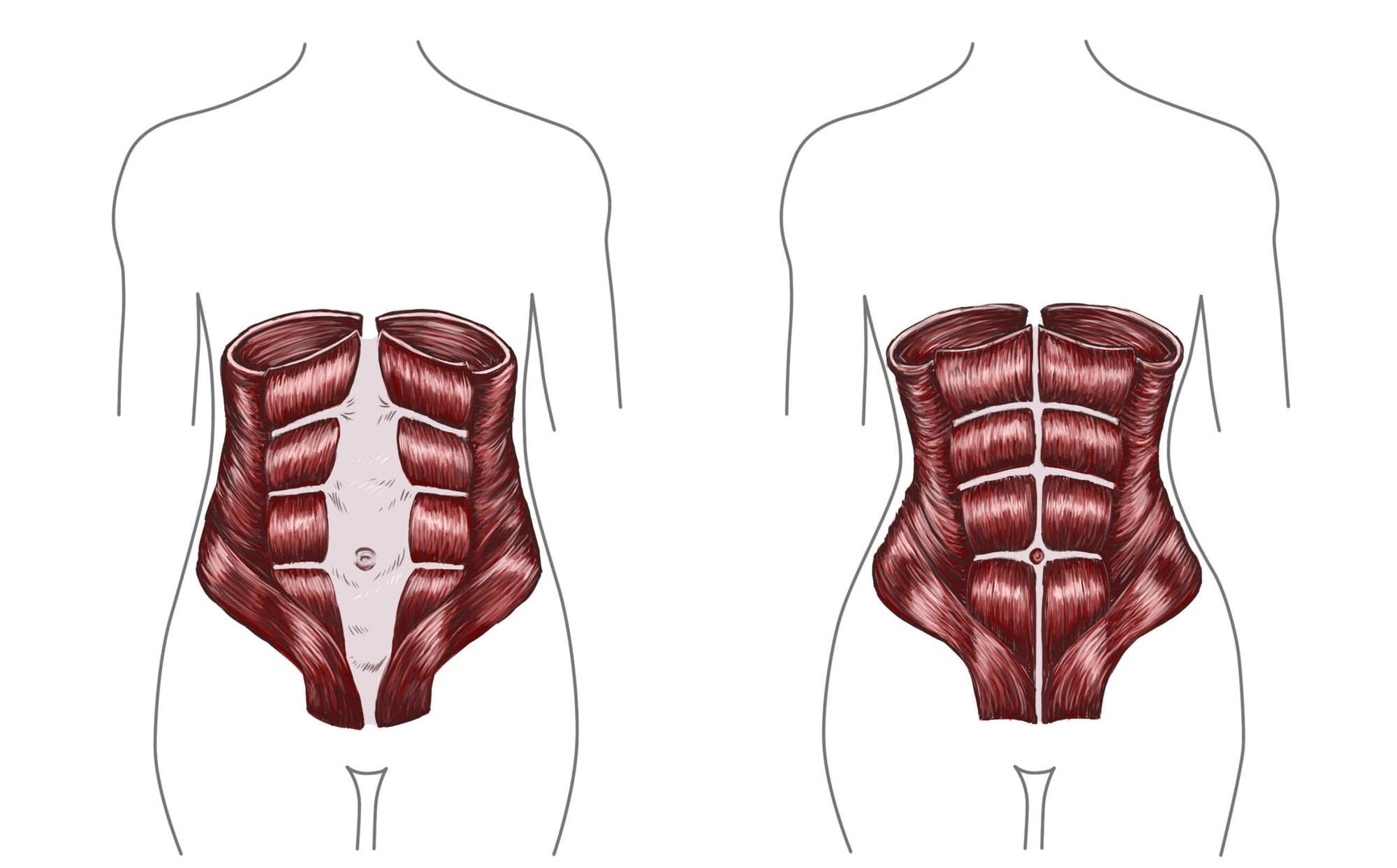 hight resolution of the diastasis recti during pregnancy