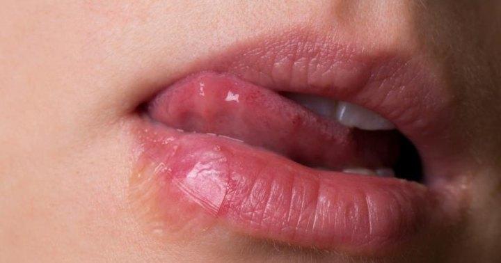 Oral herpes 2