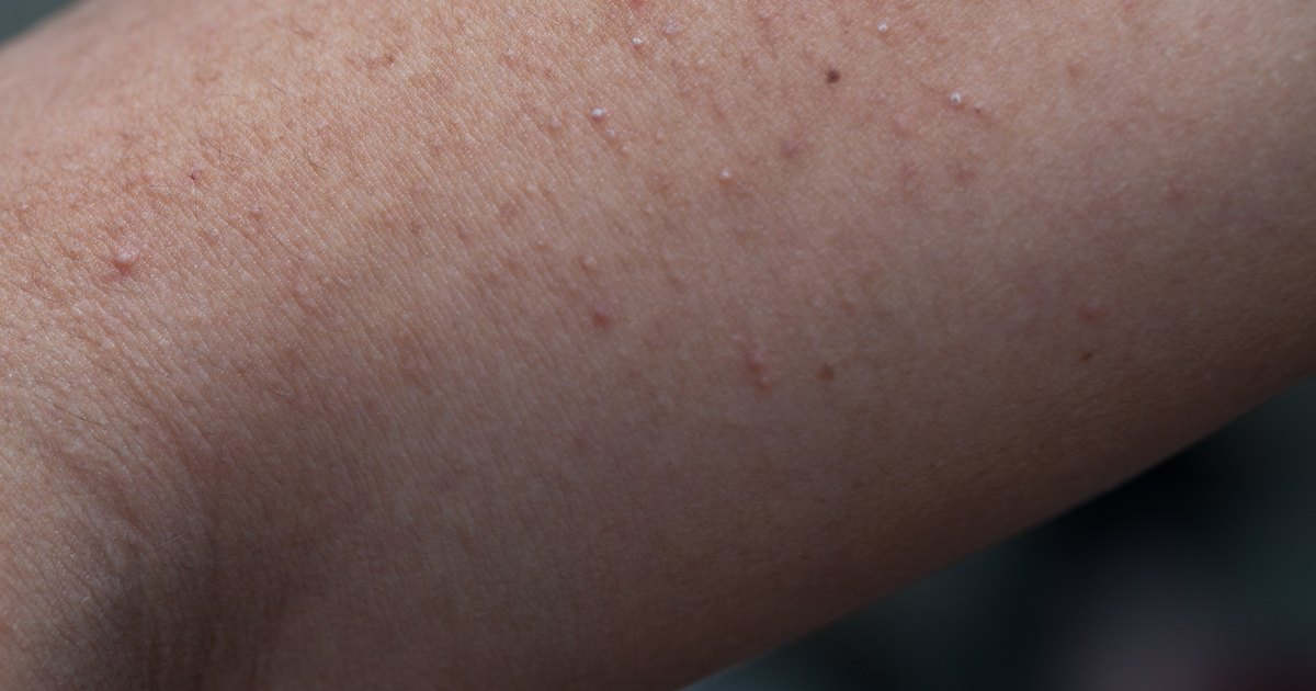 How to Get Rid of White Pimples  LIVESTRONGCOM