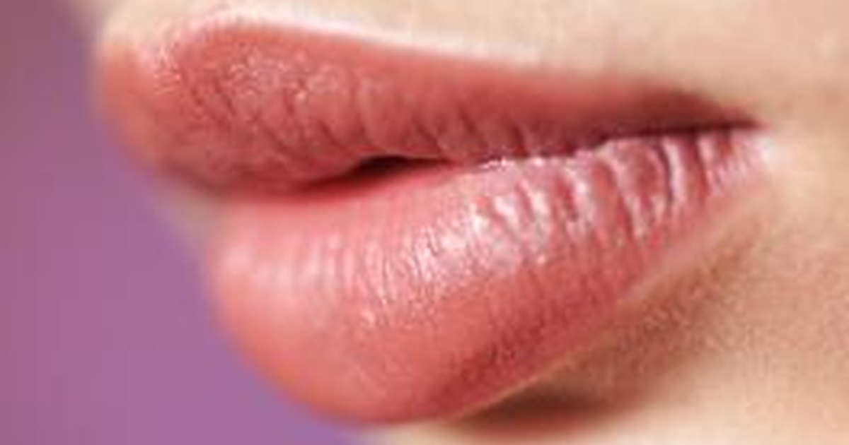 What Are the Treatments for Cheilitis  LIVESTRONGCOM