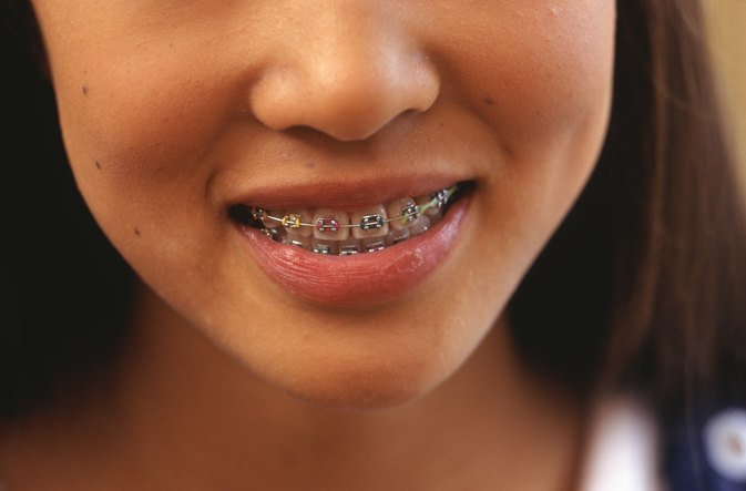 Tooth Braces and Pain  LIVESTRONGCOM