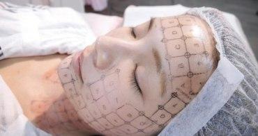 [醫美] 女人要懂得寵愛自己,請幫我Hold住青春-辰星皮膚專科診所電波拉皮全紀錄
