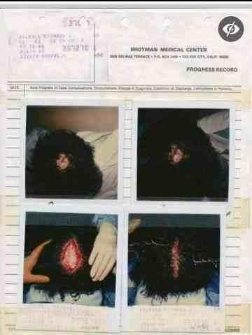 泪目!迈克尔杰克逊究竟隐藏了多少秘密,独自承受巨额伤害