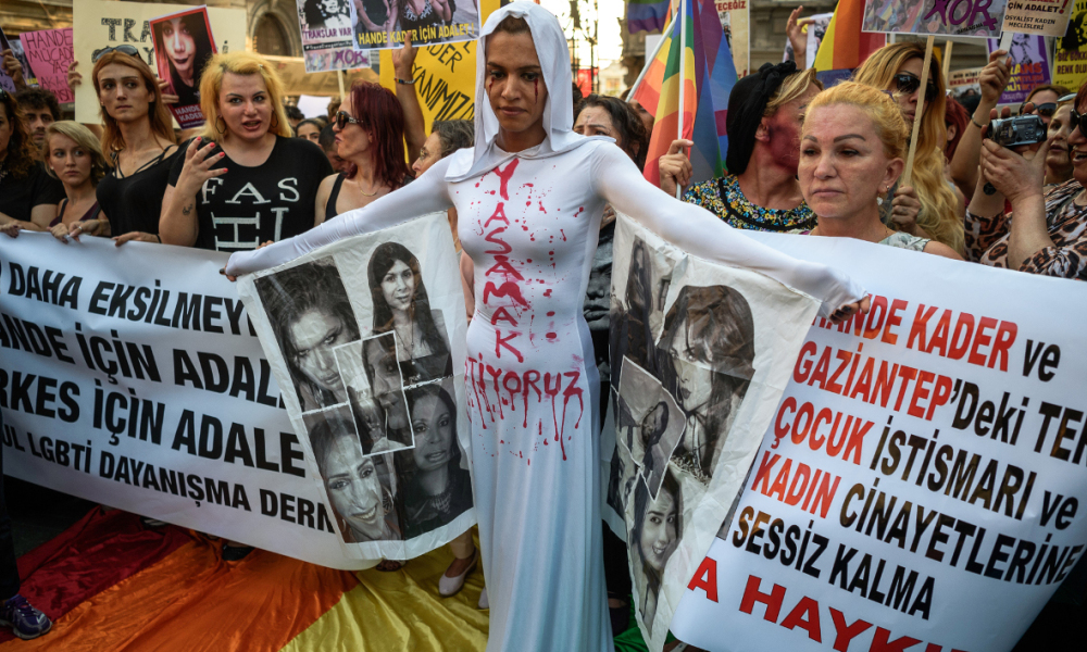 "A LGBT member stands in front of a banner with make up on her face and a writing on her body ""I want to live"" on August 21, 2016 in Istanbul during a demonstration for the murdering of a transgender activist Hande Kader, a 22-year-old transgender who was mutilated, burnt and murdered in Istanbul on last week. Nearly 200 militants of the transgender cause demonstrate in Istanbul to ask for justice after the murder of the transgender activist Hande Kader. It is the the second murder that horrified the Turkisk LGBT community after the killing, on August 4, 2016, of a Syrian refugee who was found dead with his body mutilated. OZAN KOSE / AFP"