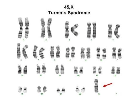 Ten Things About Turner Syndrome