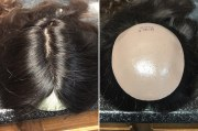 3d-printed permanent hairpieces