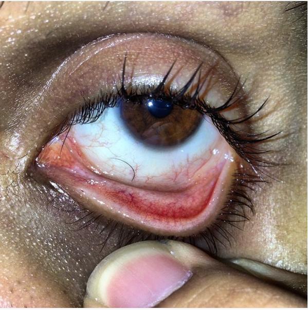 Or this rogue eyelash?
