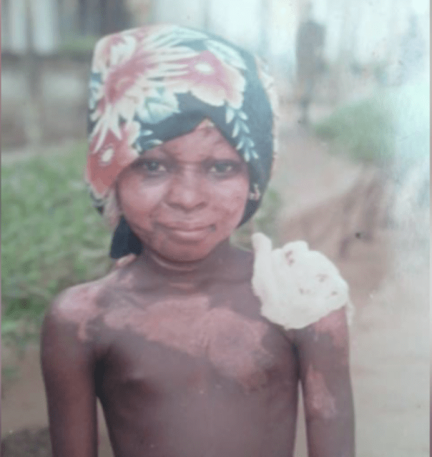 When Shalom was 9, hot oil dripped on her while she was sleeping and burned several layers of her skin off.