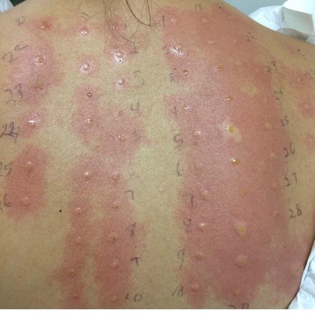 Und schließlich diese Person, die buchstäblich auf Leben allergisch ist:
