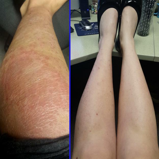Diese Person, die schuppige statt glatter Beine bekam, nachdem sie sich mit nickelhaltigen Rasierklingen rasiert hat.