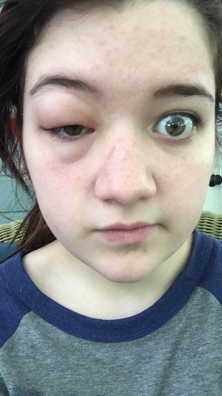 Dieses Mädchen, das nicht wusste, dass man auf Mücken allergisch sein kann: