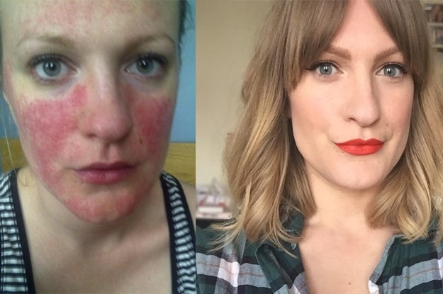 As it's Rosacea Awareness Month, I wanted to write a post with all the information I wish someone had told me years ago.