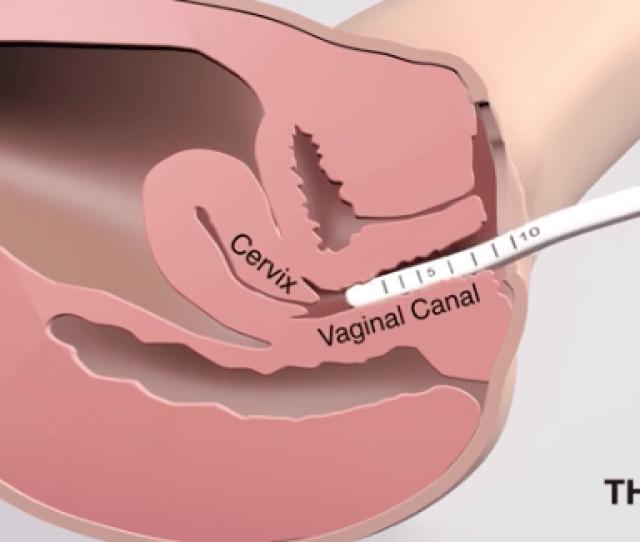 Vaginal Lasers
