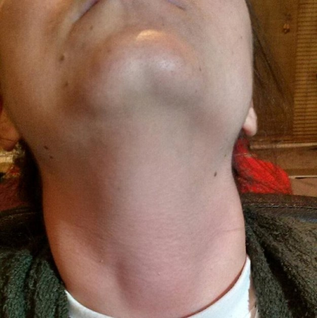This chin is NOT OK: