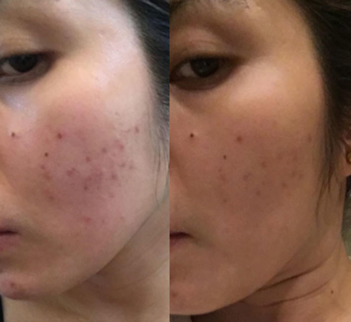 14 Face Masks With Before And After Photos That Will Have ...