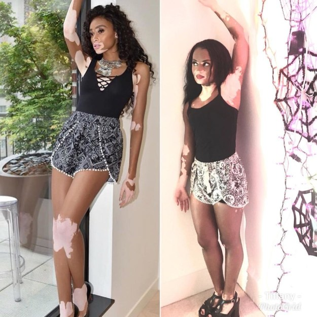 While vitiligo doesn't define Harlow, it's clear that her presence in the beauty and fashion industry has inspired countless others with vitiligo to embrace their true selves.