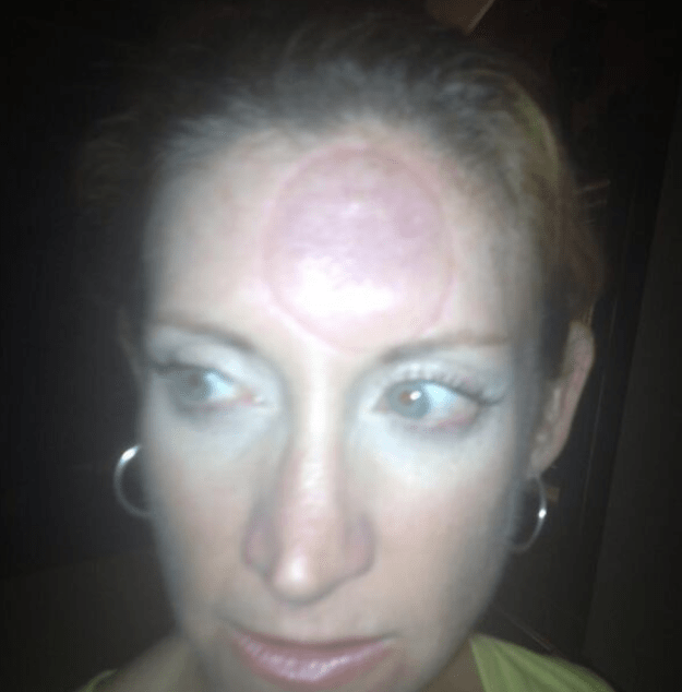 This mom who put a suction cup speaker on her forehead.  (Also, where do you even find something like that?)