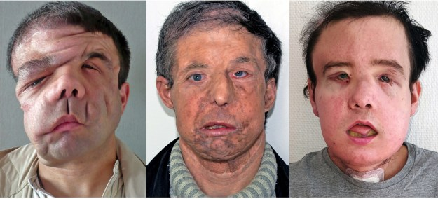Jérôme Hamon, a 43-year-old from France, has become the first person in the world to successfully receive two face transplants.