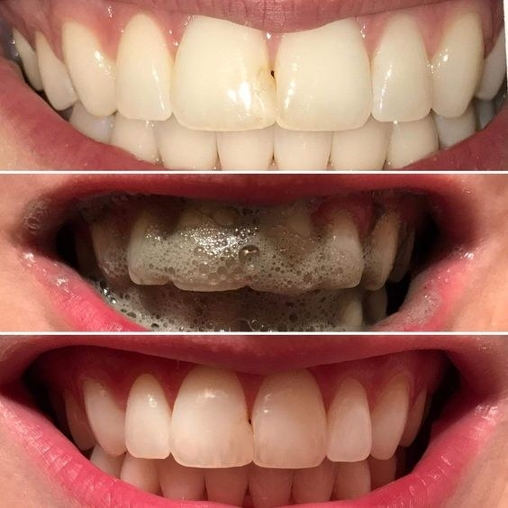 "Promising review: ""This is absolutely amazing. I'm a daily tea drinker and after one use my teeth were whiter than any whitening strip kit I have used. Just ONE brushing. Plus, the white lasts. I use it about once a week to keep my teeth whiter. When I run out I will purchase again."" —Consumer"