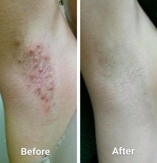 Before/after pic of reviewer's armpits with significant razor burn and bumps. The after photo shows smooth skin with no bumps or irritation.