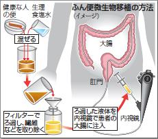腸の難病にふん便移植腸內細菌の亂れを是正國內2大學が臨床研究