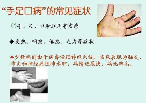 手足口病初期癥狀圖_手足口病初期癥狀圖片_綜合圖庫