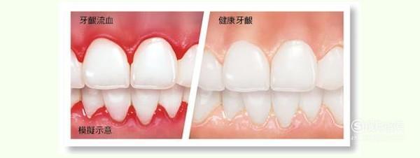 牙齦經常出血,到底是怎么回事?_酷知經驗網