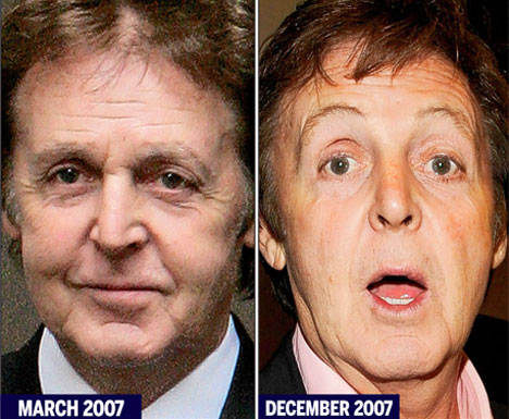 Eye feel fine: Macca has cosmetic surgery to remove crow\'s-feet from ...