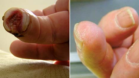 After cutting off the tip, Lee Spievack's finger was back to normal in one month