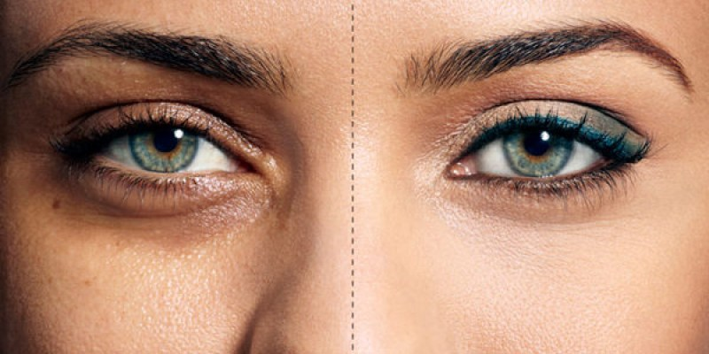 醫生,我怎麼永遠都睡不飽: 眼袋的分類跟處理,你是哪一種?