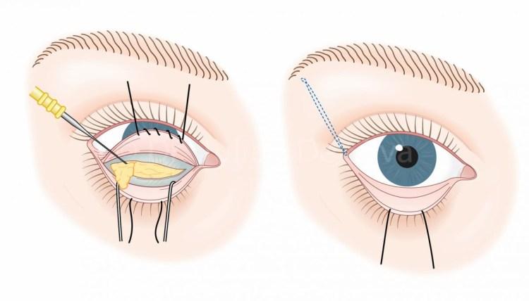 眼袋手術方法全攻略:抓住眼部下方皺紋,看起來年輕10歲!