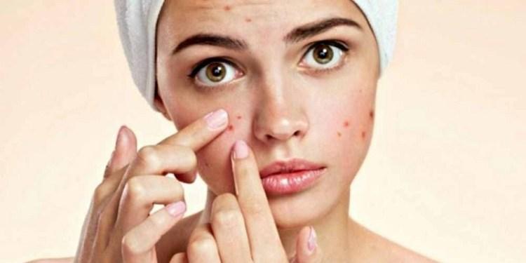平時很注重皮膚的保養,但為什麼還會長痘痘呢?