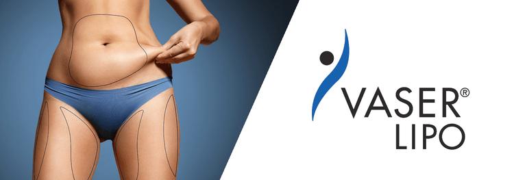 威塑(VASER)體雕的獨特之處在哪裡,術後穿塑身衣的作用又是什麼呢!?