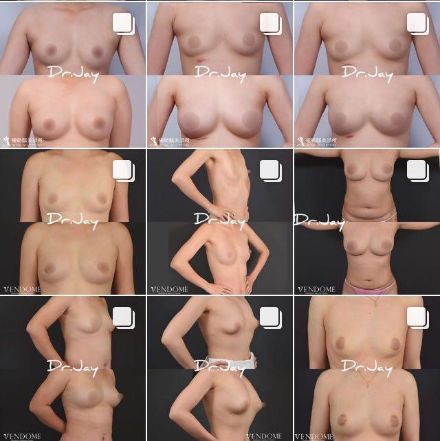【持續更新!】自體脂肪豐胸(抽脂補胸)真實案例