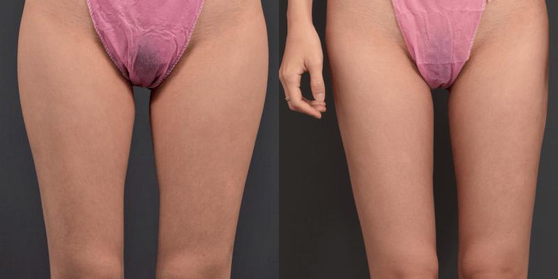 【持續更新!】威塑大腿抽脂案例