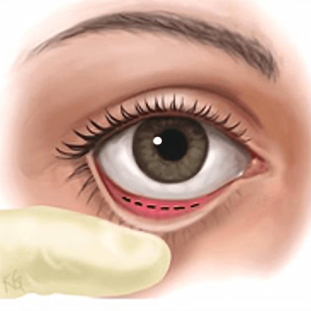 韓式隱痕眼袋手術介紹:周杰醫師的韓流研究 - 凡登整形外科