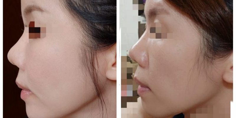 [PTT轉載] 全臉補脂三個月(周杰醫師)