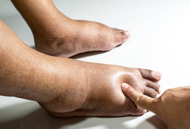 What Is Edema and How to Treat It? - eMediHealth
