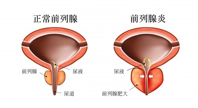 前列腺炎的不同分類 | 臺灣大紀元