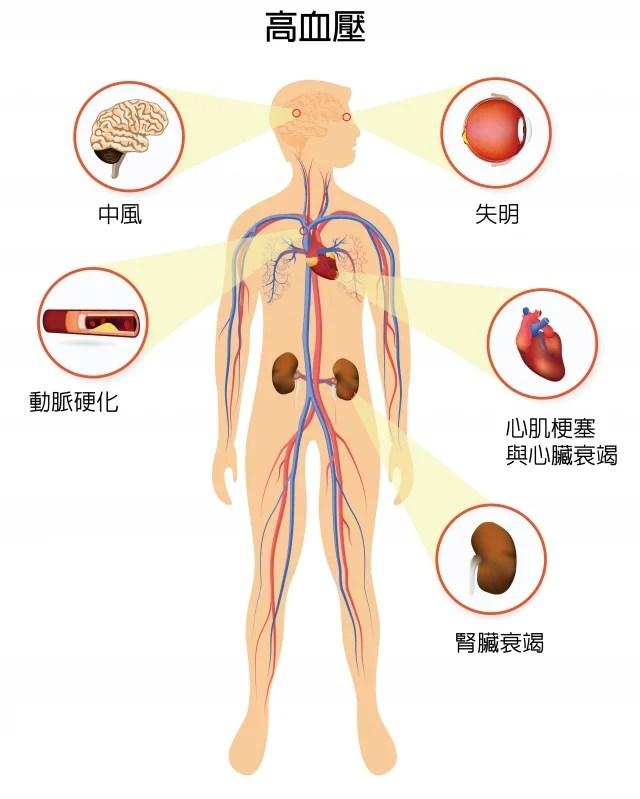 高血壓的危險性 | 高血壓 | 臺灣大紀元