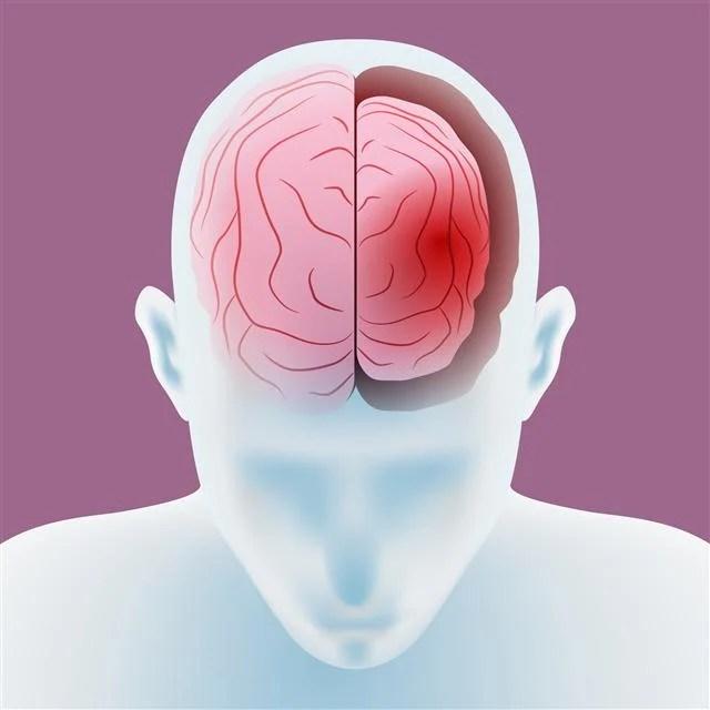 大腦一定隨年齡退化?   大腦   退化   年齡   臺灣大紀元