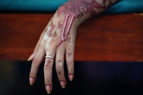 Las mujeres son las principales víctimas de los ataques con ácido