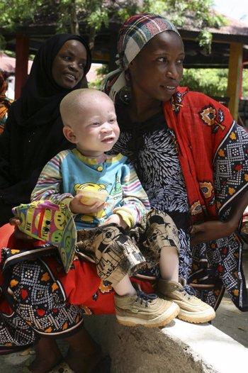 Una madre con su hijo albino en Dar es Salaam