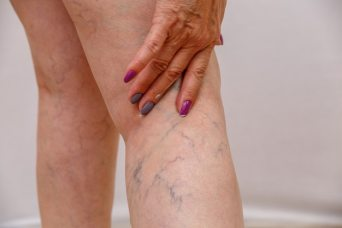 An elderly woman smears a cream or ointment on her leg on a light isolated background.