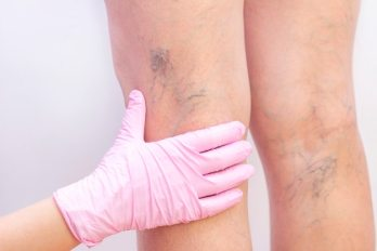 Female legs with varicose veins.