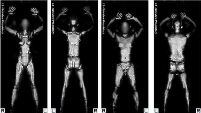 The TSA Has Finally Removed All of Its Naked Full-Body Scanners